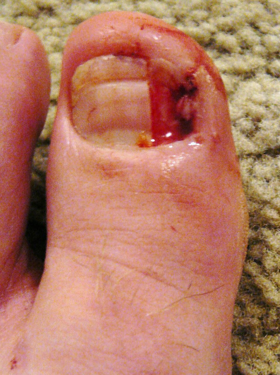 how to cut off ingrown toenail