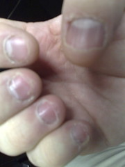 Current state nails and cuticle - right (Gadget Virtuoso) Tags: shozu biting nails resolution chewing cuticles nokian953 gadgetvirtuoso