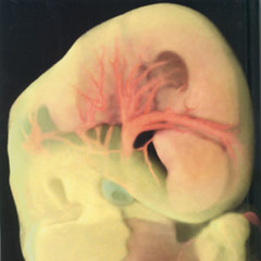 Human embryo (6 weeks)