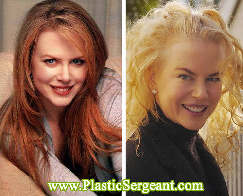 Nicole Kidman After Years Of Botox. source: www.plasticsergeant.com