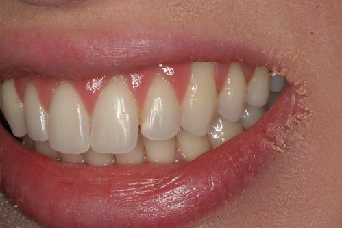 Gum Graft - Dr Tom Farley