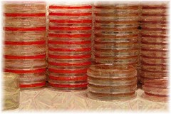 Culture Plates (Troponin) Tags: work lab culture science medical laboratory plates microbiology agar