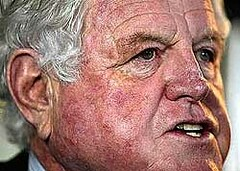 Ted_Kennedy_Drunk