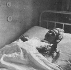 Gertrud Fink, Düren, auf dem Sterbebett im Spital kurz nach ihrem Tod