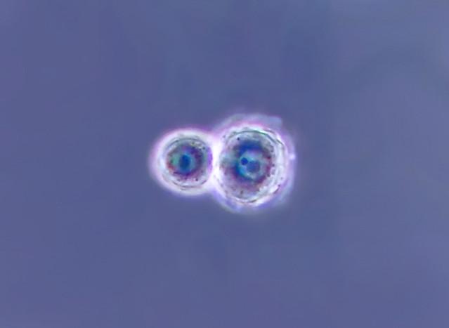 Choanoflagellate cysts o0
