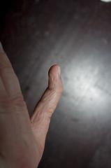 2008.04.13_(18.25.04)-1522 (fordprefectajt) Tags: adam broken finger pinky fracture dip boutonnieredeformation distalinterphalangeal dipfracture