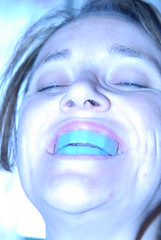 Extreme Teeth Whitening