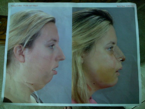 Before & After. The left photo was taken a week before my surgery.