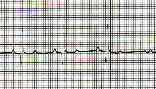 37b-after Sinus Tachycardia treatment with propanolol by hungarovet