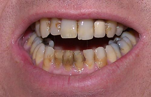 Bottom-Teeth