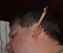 earcandle