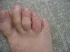 Foot (thomaspudding) Tags: gross fungus athletesfoot monkeyfoot