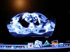OsiriX (alvaromarichal) Tags: mac escritorio