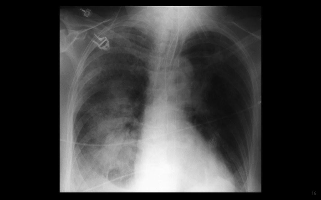 ICU lines and tubes - ETT, IABP, NGT, pneumonia