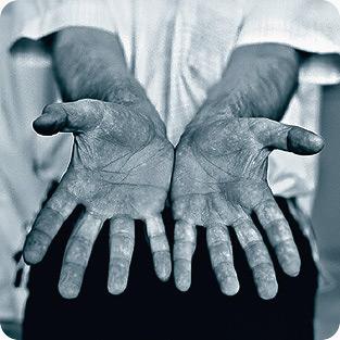 Диагностика болезней по рукам.