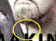 Chin Hair