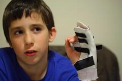 Morgan hand splint