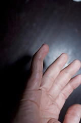 2008.04.13_(18.25.10)-1524 (fordprefectajt) Tags: adam broken finger pinky fracture dip boutonnieredeformation distalinterphalangeal dipfracture
