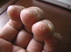 how to get rid of blisters on fingers from guitar