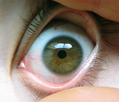 eyeball (digitalrevolution) Tags: iris eye look see eyeball redeye eyelash veins bloody pupil eyelid capillaries bulging retina cornea browneye hazeleye