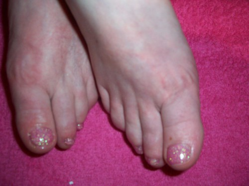 Home Remes for Toenail Fungus; Powerful and Effective