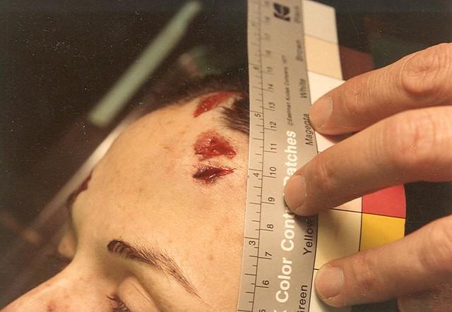 Nixon Wounds