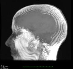 head-rendering (Liz Henry) Tags: me skull profile brain bookcover mri