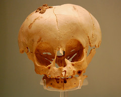 Brittle bone disease in ancient Egypt (Prof. Jas. Mundie) Tags: uk greatbritain england london monster museum skull child unitedkingdom egypt exhibit exhibition collection health freak egyptian medicine monsters monstrosity prodigy britishmuseum oddity curiosity disease abnormal freaks deformed ancientegypt museumcollection londonengland deformity freakofnature mundie monstres abnormality copyrightprotected jamesmundie 22nddynasty osteogenesisimperfecta jamesgmundie profjasmundie cabinetofwonders morbidanatomy brittlebonesyndrome teratology geneticanomaly publiccollection londoneng jimmundie arsmedica fixedshadows copyrightjamesgmundieallrightsreserved