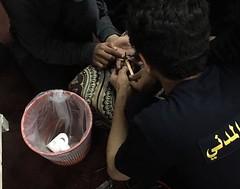 تحرير أصبع شاب من خاتم حديدي في رفحاء (ahmkbrcom) Tags: محافظة رفحاء
