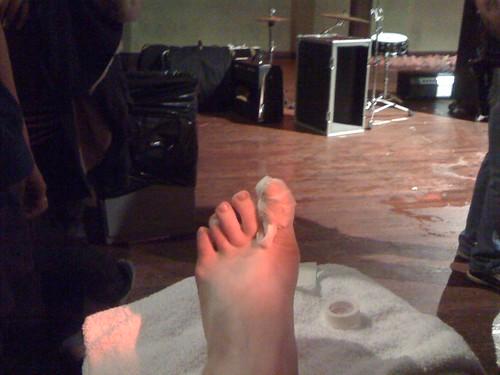 my toe, josh's handiwork