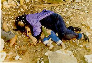 Victims of Saddam Hussein and Chemical Ali's use of Weapons of Mass Destruction at Halabja, Iraq