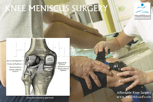 much does meniscus surgery cost