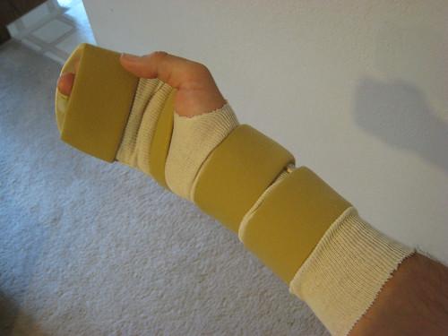 Splint #2