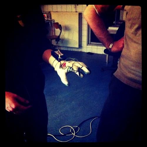 Freak Bionic Hand
