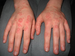 Hand rash Dermatology facial flushing photo on