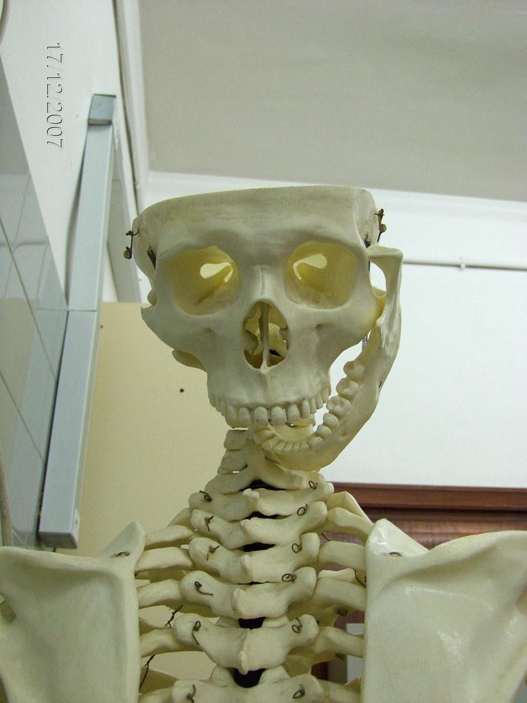 pobre esqueleto