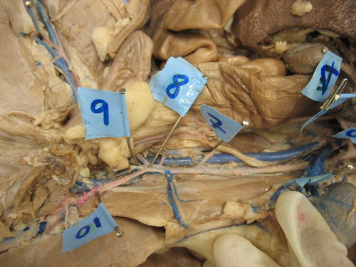 Aneurisma Da Aorta Abdominal. Lower Aorta (Abdominal)