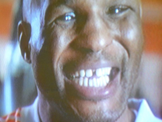 Bernard Hopkins Teeth