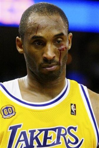 Kobe bloody