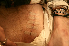 mikes scar (Bridget Christian) Tags: mike surgery belly operation scar hernia