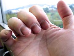 指甲被染黑了