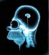 Fouten van beleggers zijn te voorkomen door screening hersenen