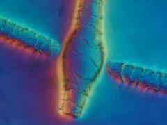 Differentialmoulage (medXtreme) Tags: supershot mikroskopie theperfectphotographer differentiellerinterferenziellerphasenkontrastfaserabdruck lightiq