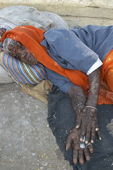 INDIA5301/Tumours (a PSYCHIATRIST'S view) Tags: street people india portraits photography delhi muslim islam poor streetphotography photojournalism buddhism impoverished flip flops local hindu hinduism lepers leprosy begging scenics mosques handicapped deformed disenfranchised mental beggars patients streetphotographer mysoreindia kolkataindia glennlosack indianbeggars losack deformedbeggars neurofibramatosis beggarsonstreets beggingatcars glosack dahlits