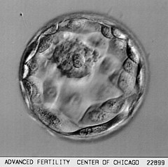 Too Bad You Can't See The Blastocyst!