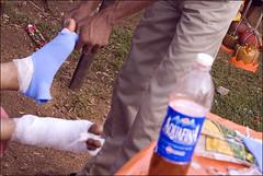 Injured - Suypahar (Elishams) Tags: india feet walk indian religion petrol care pilgrimage courage pilgrims bihar pelerin northindia भारत sultanganj indedunord bravoure bolbam
