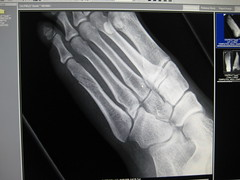 dance workshop casualty (hradcanska) Tags: me broken hospital spiral foot toe break may australia melbourne bone fracture metatarsal