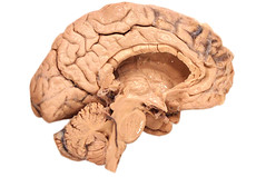 Human brain, medial view (EUSKALANATO) Tags: head brain human anatomy corpus dominance cortex cerebral neurology neurons hemispheres brainstem callosum neurvous