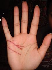Filipino Cut Hand (greggoconnell) Tags: cat hands cut filipino scratched scratch emilyignacio