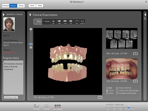 3D Patient Records for Dentistry